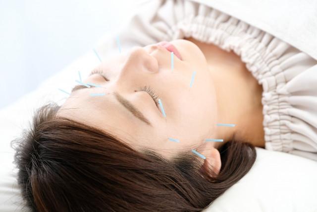 細い鍼でツボを刺激して肌の本質から改善する施術です